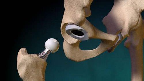 эндопротезирование суставов в мире