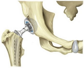 Неполное эндопротезирование тазобедренного сустава