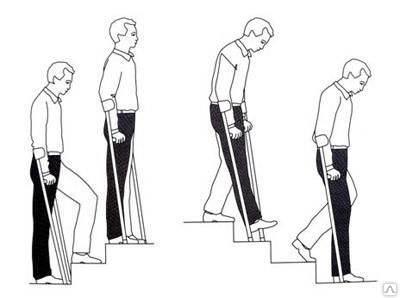 ходьба на костылях после замены тбс