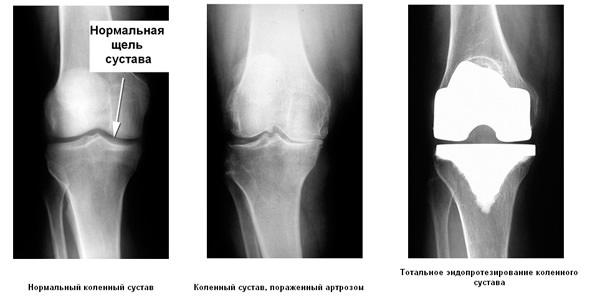 колено до и после протезирования