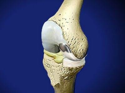 Реабилитация после эндопротезирования коленного сустава дома