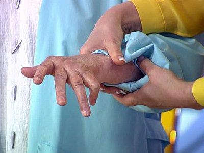 лечение ревматоидного артрита в ассута