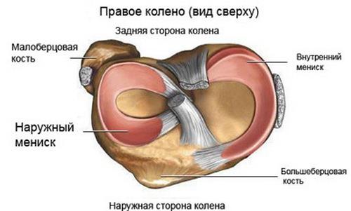 Мениск колена фото после операции