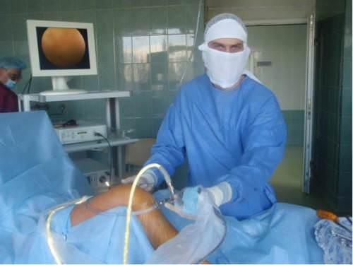 Нужна ли операция при разрыве связок