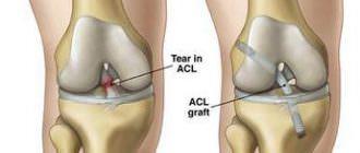 лечение и операция на связках коленного сустава