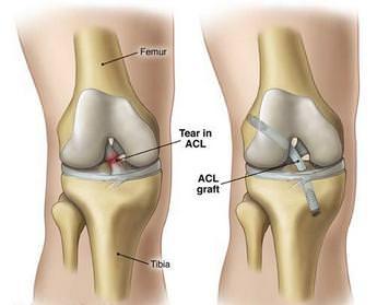 Воспаление крестообразных связок коленного сустава