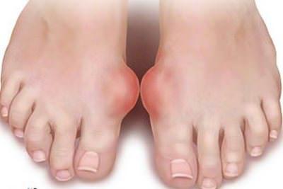 Воспалительное заболевание суставов