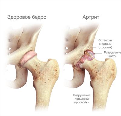 Видео замена тазобедренного сустава отек костного мозга коленного сустава