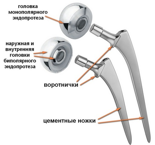 протез тазобедренного сустава для пожилых