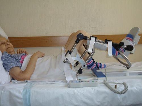 Восстановление после эндопротезирования коленного сустава