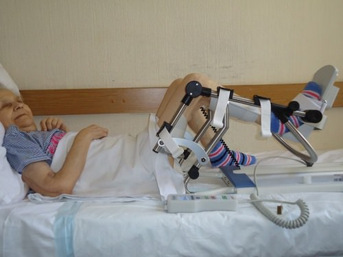 реабилитация коленного сустава