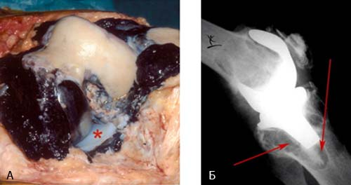 ревизионное протезирование коленного сустава