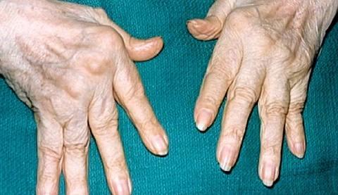 Болезнь артрит суставов