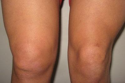 Воспаление ткани вокруг сустава