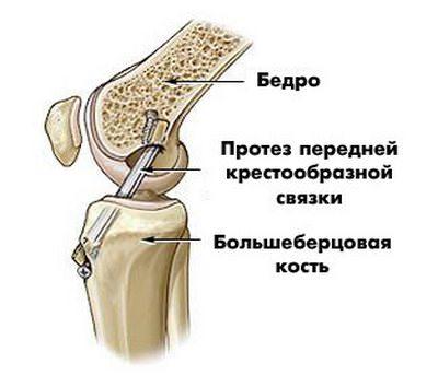 артропластика связки