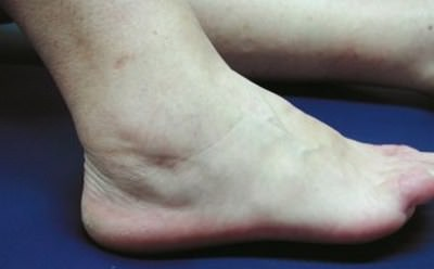 Степени артроз коленного сустава