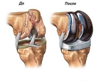Артропластика коленного и тазобедренного суставов
