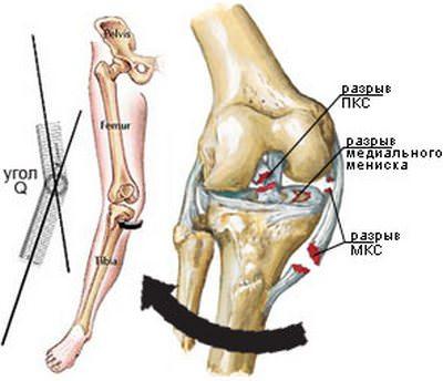растяжение связок коленного сустава сроки восстановления больничный