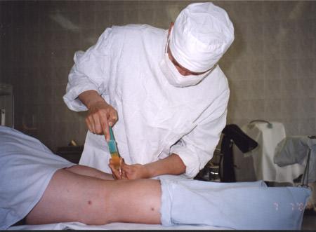операция при кисте бейкера