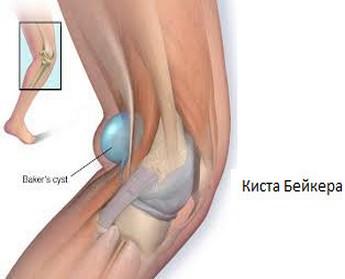Пункция киста Бейкера коленного сустава: подробное описание, противопоказания, ход выполнения