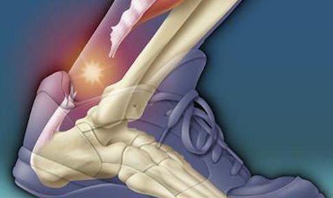 лечение разрыва ахиллова сухожилия