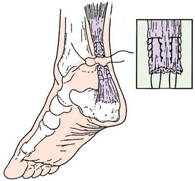 Разрыв ахилового сухожилия