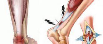 как лечить разрыв ахиллова сухожилия
