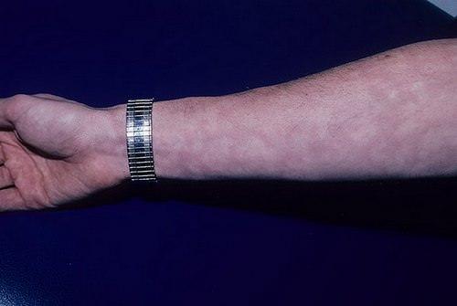 кожные покровы при ревматоидном артрите