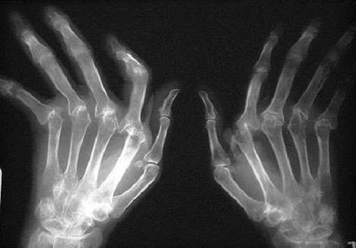 рентген при ревматическом артрите