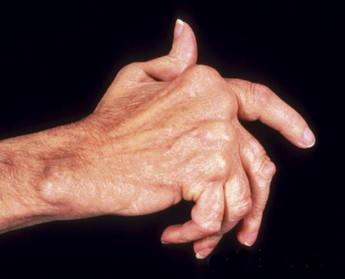 Сыпь при ревматоидном артрите фото