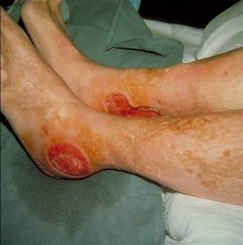 Ревматоидный артрит: причины, признаки, лечение и диагностика