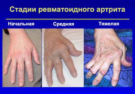Артрит симптомы фото