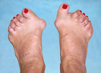 Артрит симптомы лечение диагностика фото
