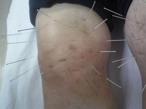 тонизирующая иглотерапия при артрите