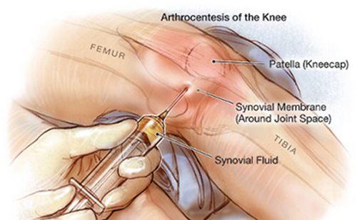 Инфекции поражающие суставы