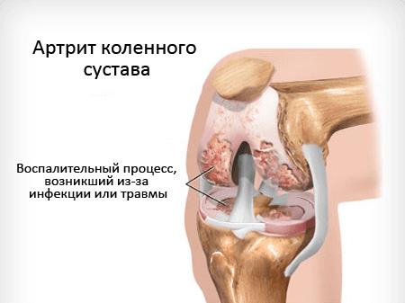 факторы инфекционного артрита