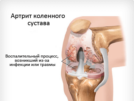 Вирус бактерия поражающий кости