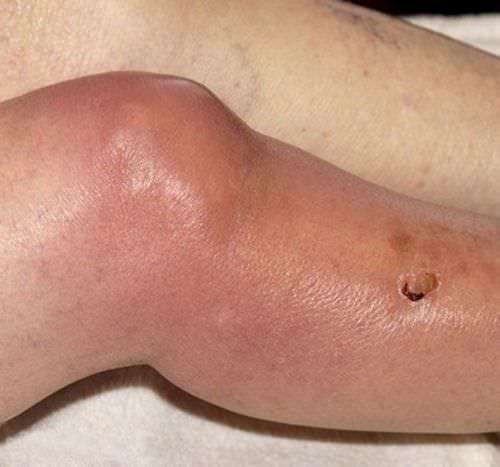 симптомы инфекционного артрита