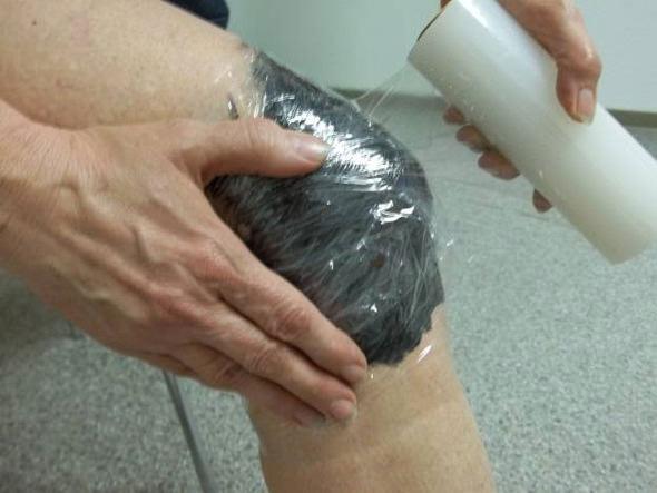 лечение глиной ревматоидного артрита