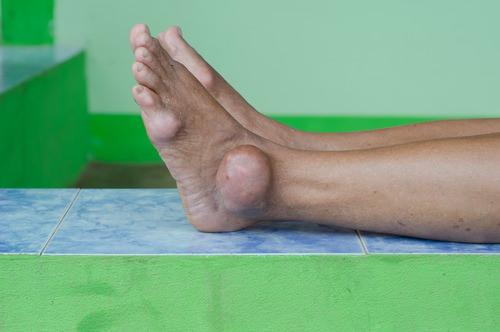 симптомы хронического подагрического артрита