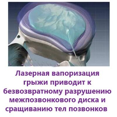 Бурденко симптом позвоночной артерии операция