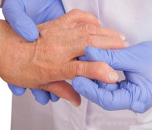 Гепазтоз приревматоидном артрите