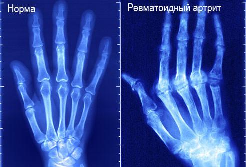 Поздняя стадия ревматоидного артрита