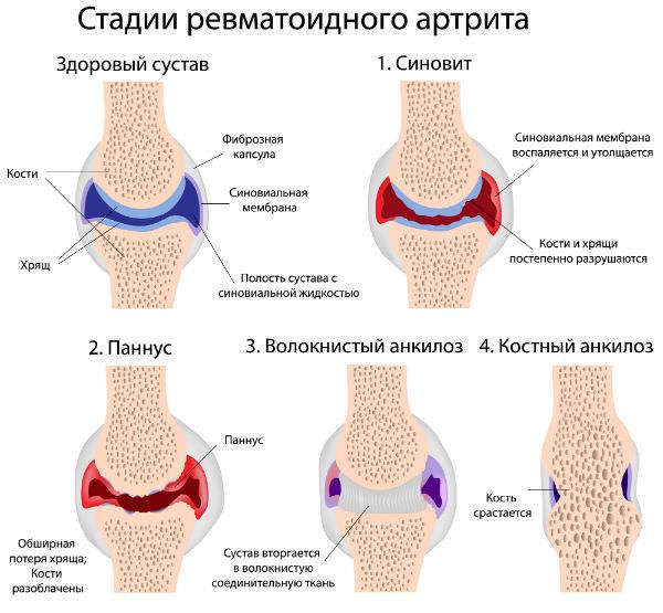 стадии серопозитивного ревматоидного артрита