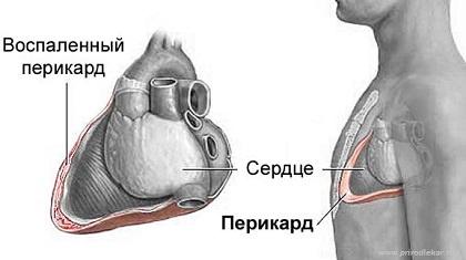 внесуставные симптомы при ювенильном ревматоидном артрите