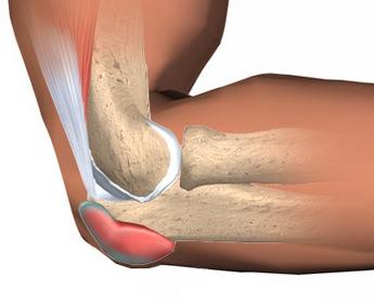 Воспаление мягких тканей костей и суставов как выглядит гнойник голеностопного сустава
