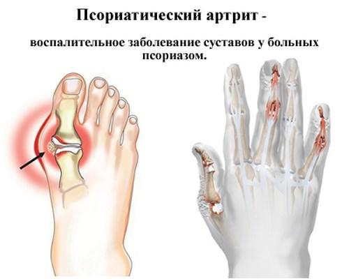 Псариатический артрит