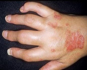 Мази при псориатическом артрите - побочные эффекты, проявления, свечи, средства