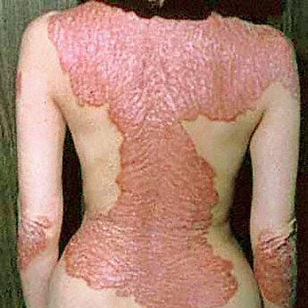 Самый странный из всех артритов – псориатический | Медицина ...