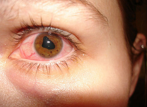 Ревматоидный артрит глаз